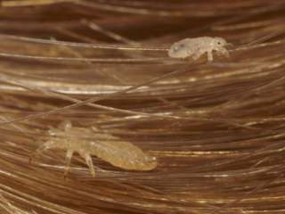 Head Lice Crawling Through Hair Photographic Print by Darlyne A